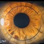 Intracorneal ring segments