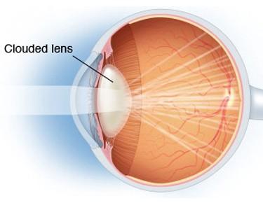 cataractspecialist